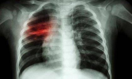 Polmonite 138 casi in Lombardia