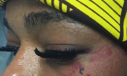 Aggressione omofoba a Novara: nessuno ha aiutato la donna picchiata