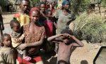 """Centro Aiuti per L'Etiopia: """"Qui situazione sempre più difficile"""""""