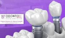 Tornare a sorridere in 24 ore: come funzionano gli impianti dentali a carico immediato